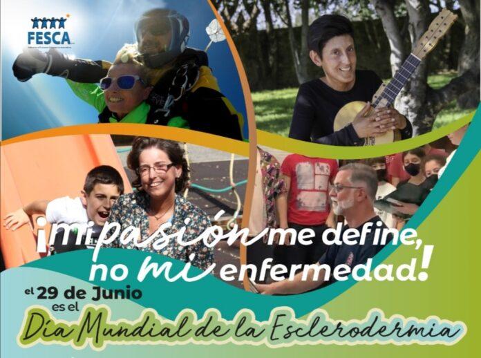 29 de Junio, Día Mundial de la Esclerodermia